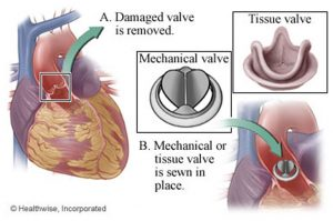 valve replacement diagram
